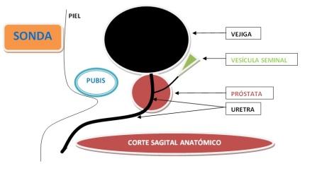 prostata tamaño normal medidas en cc