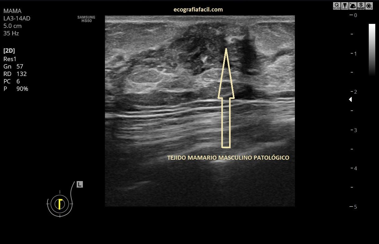 nodulo solido hipoecoico contornos irregulares mama