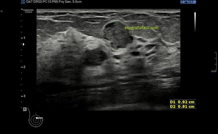 Papiloma ductal ecografia Papilloma foot treatment